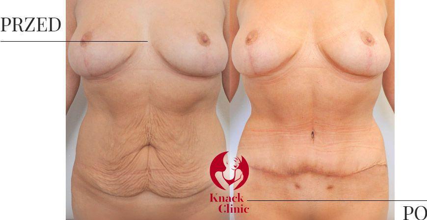 abdominoplastyka v1