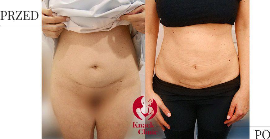 liposukcja v1