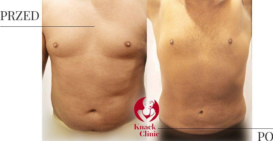 liposukcja v3