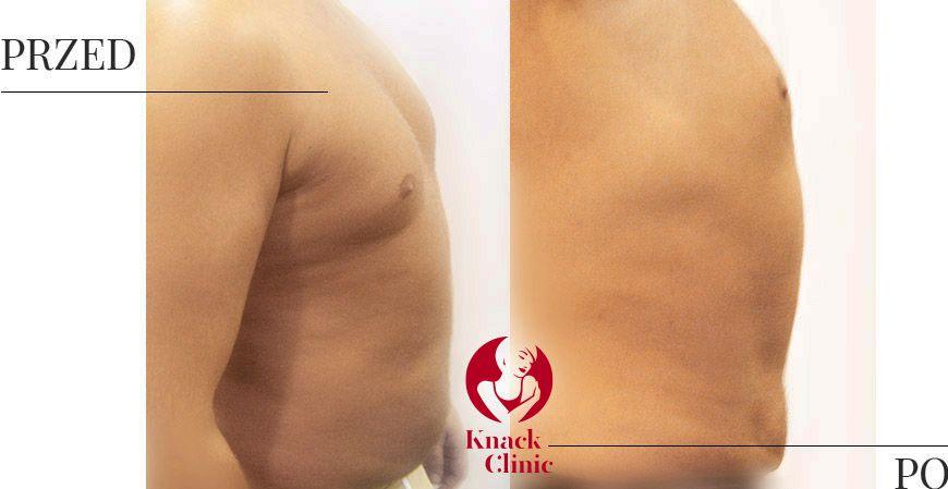 liposukcja v4